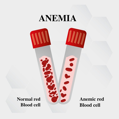 anemia blood cell